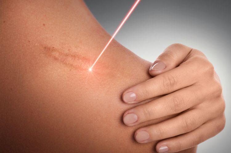 首イボのレーザー治療のイメージ